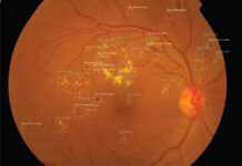 AI Solution By Intel an Aid to Reduce Diabetic Vision Loss
